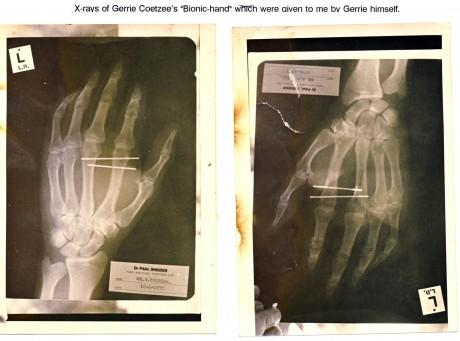 8. Gerrie Coetzee Bionic hand